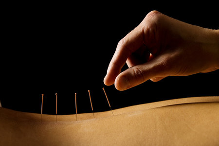Using Acupuncture to Treat Binge Eating and Food Addiction
